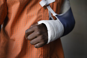 Man with broken arm  close-up of cast --- Image by © moodboard/Corbis